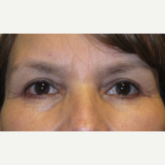 38 year old woman treated with Eyelid Surgery after 3026654
