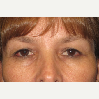 38 year old woman treated with Eyelid Surgery before 3026654