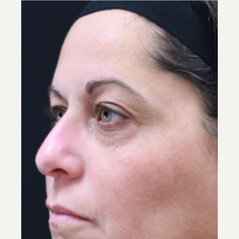 51 year old female treated with Botox for crow's feet and eyebrow raise before 3418038
