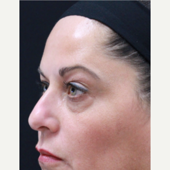 51 year old female treated with Botox for crow's feet and eyebrow raise after 3418038