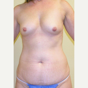 35-44 year old woman treated with Mommy Makeover before 3434703