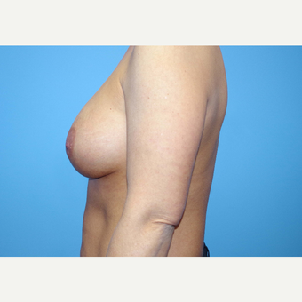 35-44 year old woman treated with Breast Implants after 3440937