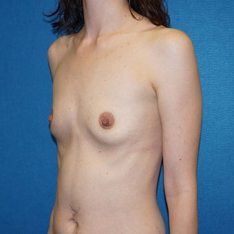 27 year old woman treated with Breast Augmentation 3576678