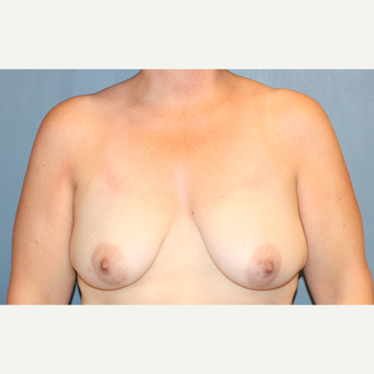 Breast Implants With Breast Lift before 3610218