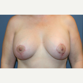 Breast Implants With Breast Lift after 3610218