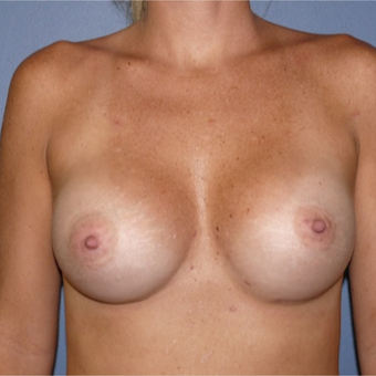45-54 year old woman treated with Breast Reconstruction after 2831615