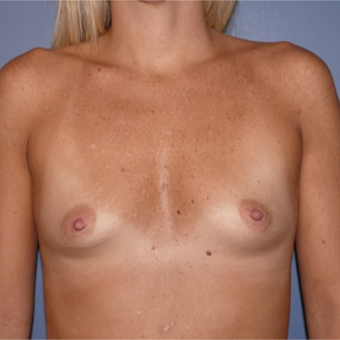 45-54 year old woman treated with Breast Reconstruction before 2831615