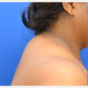 Buffalo Hump Reduction with Tumescent Liposuction before 3804421