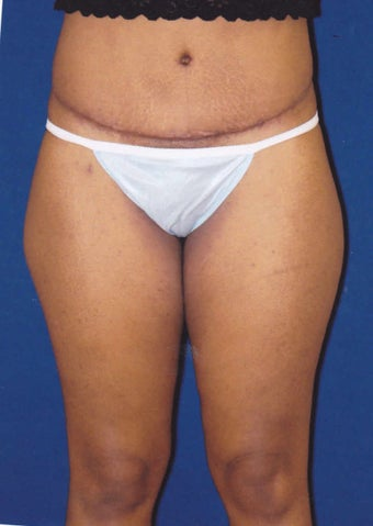 Tummy Tuck/Abdominoplasty after 1485491