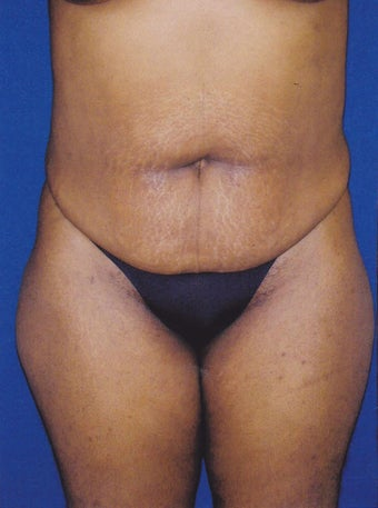 Tummy Tuck/Abdominoplasty before 1485491