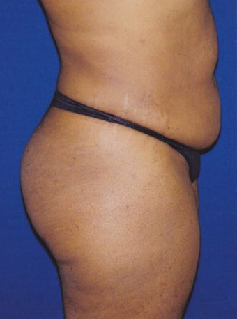 Tummy Tuck/Abdominoplasty 1485491