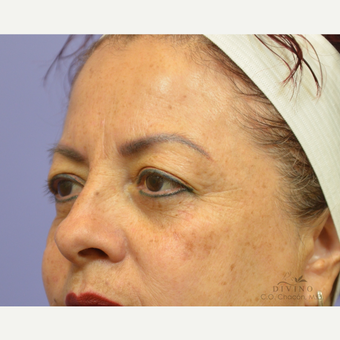 45-54 year old woman treated with Eyelid Surgery before 3391444