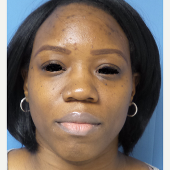 35-44 year old woman treated with African American Rhinoplasty before 3169259