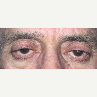 59 year old man treated blepharoplasty. before 3582908