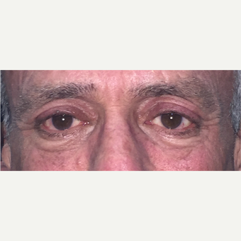 59 year old man treated blepharoplasty. after 3582908