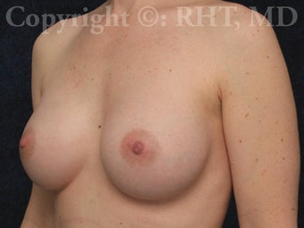 Breast enlargement after 259388