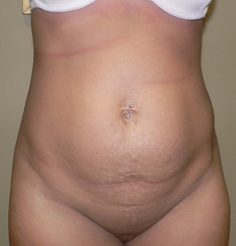 36 year old woman has Tummy Tuck before 990643