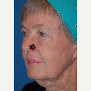 55-64 year old woman treated with Mohs Surgery before 3389230