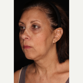 55-64 year old woman treated with Liquid Facelift after 3764796