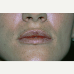 Lip Augmentation before 3720059