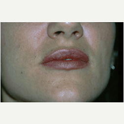 Lip Augmentation after 3720059