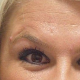 25-34 year old woman treated with Botox before 1581687