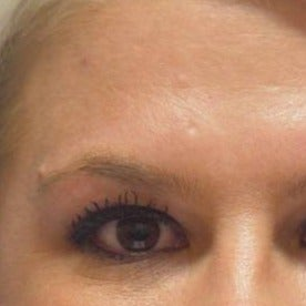 25-34 year old woman treated with Botox after 1581687