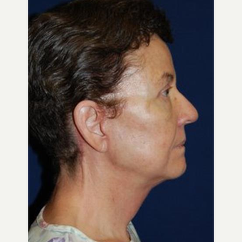 55-64 year old woman treated with Facelift after 3370674