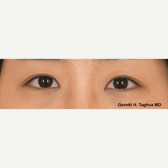 18-24 year old woman treated with Asian Eyelid Surgery
