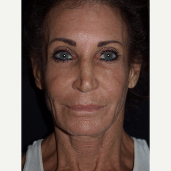 65-74 year old woman treated with Facelift before 3082362