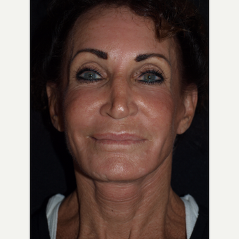 65-74 year old woman treated with Facelift after 3082362