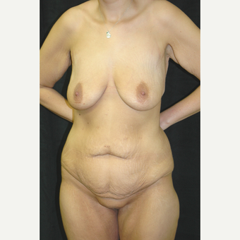25-34 year old woman treated with Body Lift before 3181656