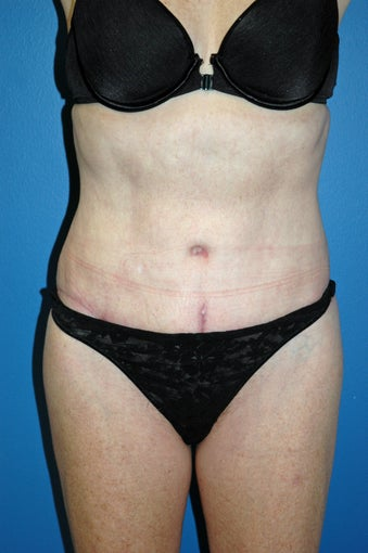 revision of liposuction after 1071372