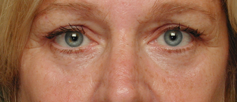 Laser resurfacing, Blepharoplasty after 332427