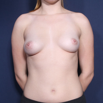 18-24 year old woman treated with Breast Augmentation (set 1 of 2) before 2994343