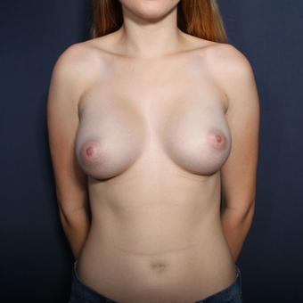 18-24 year old woman treated with Breast Augmentation (set 1 of 2) after 2994343