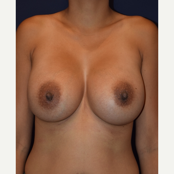 25-34 year old woman treated with Breast Augmentation after 3212084