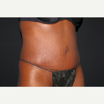 35-44 year old woman treated with Tummy Tuck after 3741807
