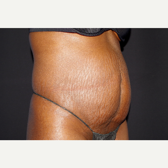 35-44 year old woman treated with Tummy Tuck before 3741807