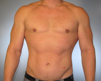 30-year-old Male Gynecomastia after 1469758