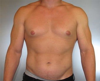 30-year-old Male Gynecomastia before 1469758