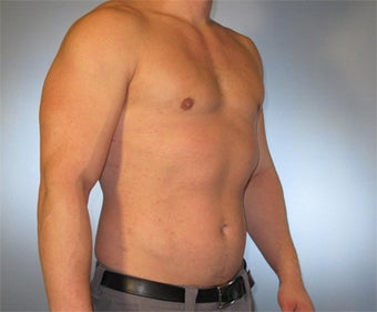 30-year-old Male Gynecomastia 1469758