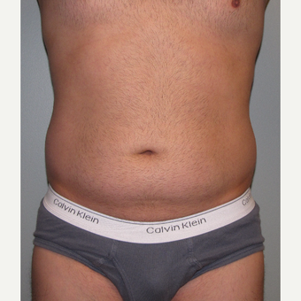 35-44 year old man treated with Liposuction before 3248797