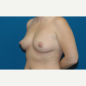 34 year old woman treated with Breast Augmentation before 3208188