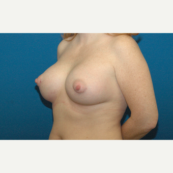 34 year old woman treated with Breast Augmentation after 3208188