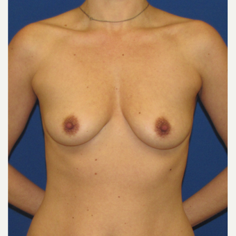 25-34 year old woman treated with Breast Implants before 3847370