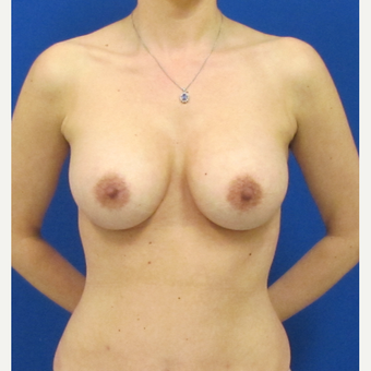 25-34 year old woman treated with Breast Implants after 3847370