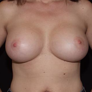 45-54 year old woman treated with Breast Implants after 3506817