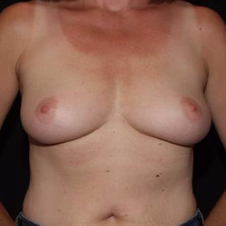 45-54 year old woman treated with Breast Implants before 3506817