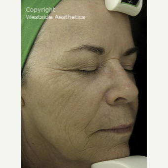 Fraxel for Deep Wrinkles and Sun Spots after 3065417